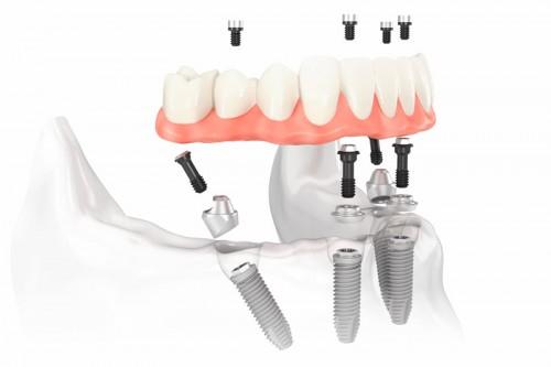 no-mas-protesis-all-on-4-implante-mandibula-500x333