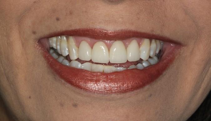 santiago-gonzalez-diseño-sonrisa-3