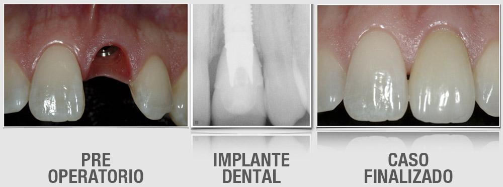 santiago-gonzalez-implante-unico-6