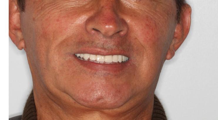 santiago-gonzalez-implantes-10