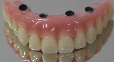 santiago-gonzalez-implantes-11