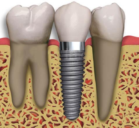 santiago-gonzalez-implantes-2