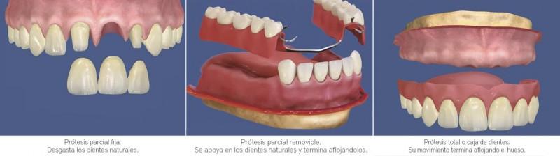santiago-gonzalez-implantes-6