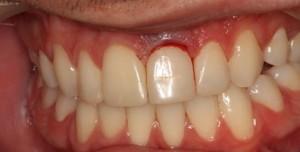santiago-gonzalez-implante-unico-1