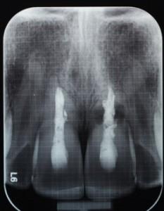 santiago-gonzalez-implante-unico-2