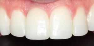 santiago-gonzalez-implante-unico-4