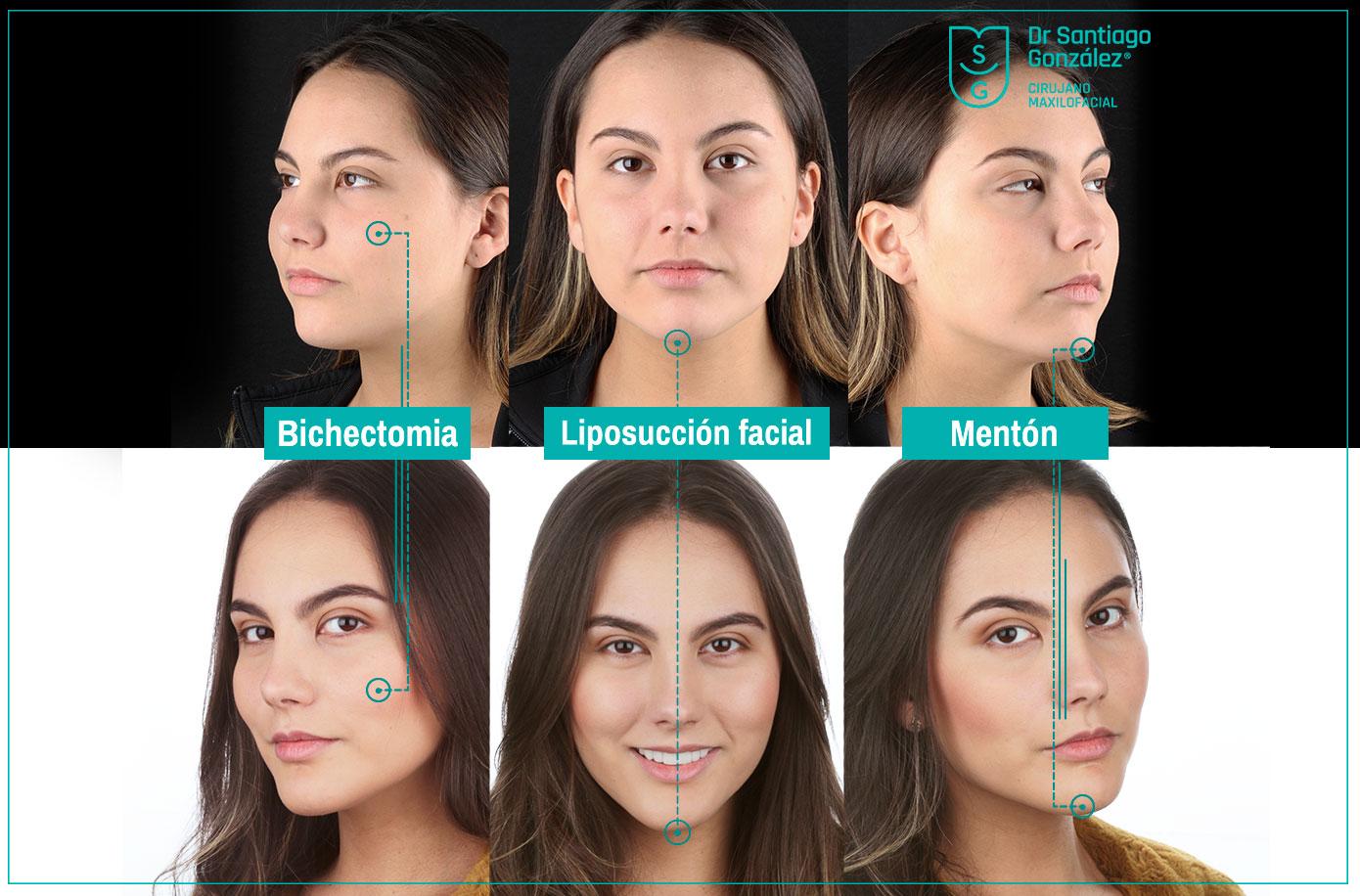 santiago-gonzalez-marcacion-facial